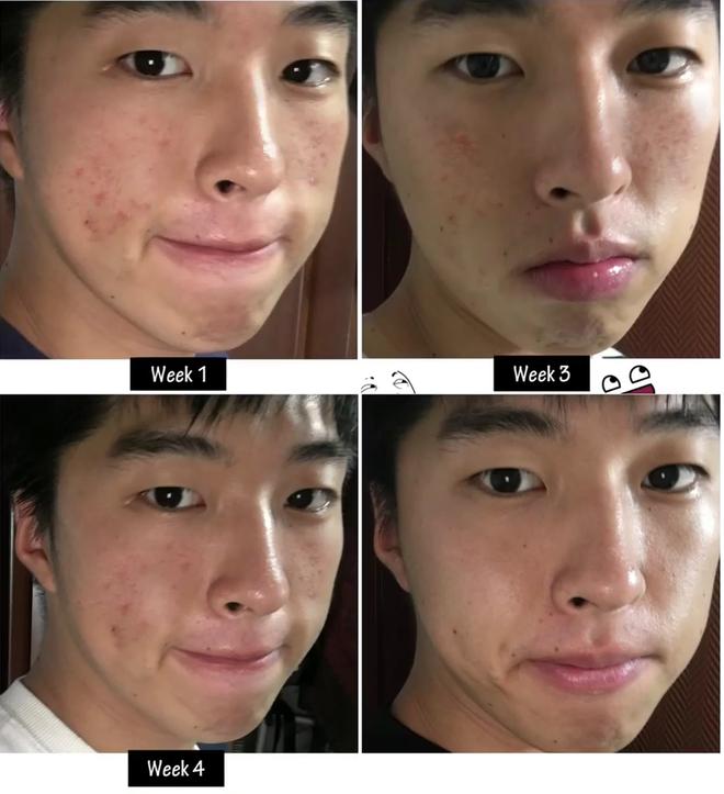 Xà phòng trị mụn Strawberry Milk Soap Hàn Quốc