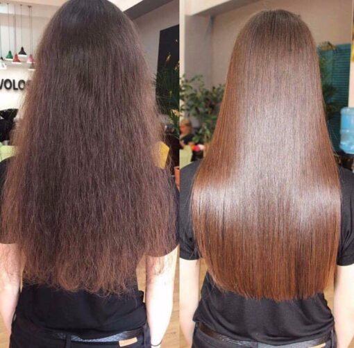 Cặpdầugộixảngăn ngừa rụng tóc BiotinMefaso
