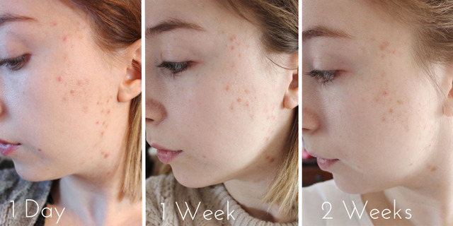 Kem trị sẹo thâm La Roche Posay Cicaplast Pro-Recovery Skincare