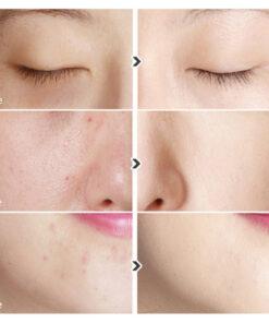 che-khuyet-diem-2-dau-karadium-skin-perfection-concealer-10