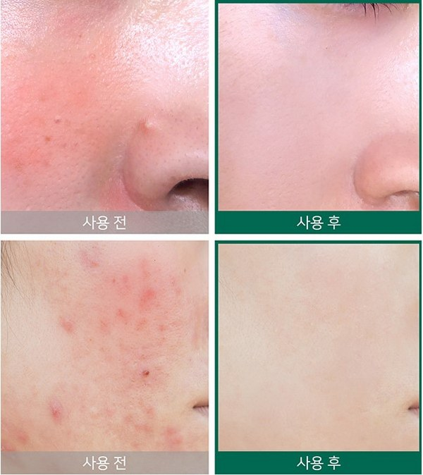 Kem dưỡng Some By Mi AHA-BHA-PHA 30 Days Miracle Cream 50ml