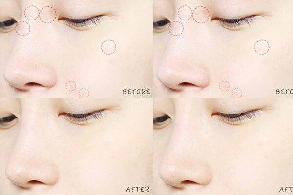 cosrx-acne-pimple-master-patch-22