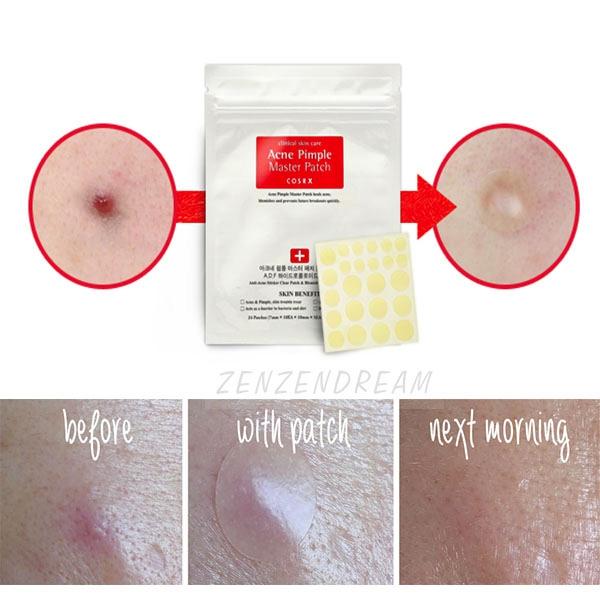 cosrx-acne-pimple-master-patch-6