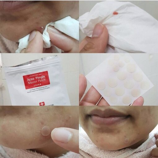 cosrx-acne-pimple-master-patch-8