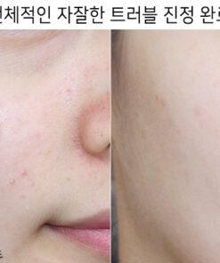 gel-che-khuyet-diem-not4u-real-skin-13