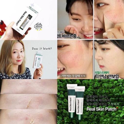 gel-che-khuyet-diem-not4u-real-skin-9