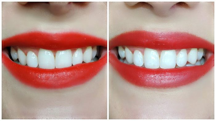 Miếng dán trắng răng Crest 3D White Brilliance Supreme FlexFit