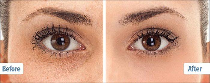 Kem mắt Balance Active Formula Snake Venom Eye Cream