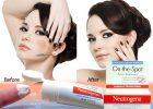kem-tri-mun-neutrogena-on-the-spot-acne-15