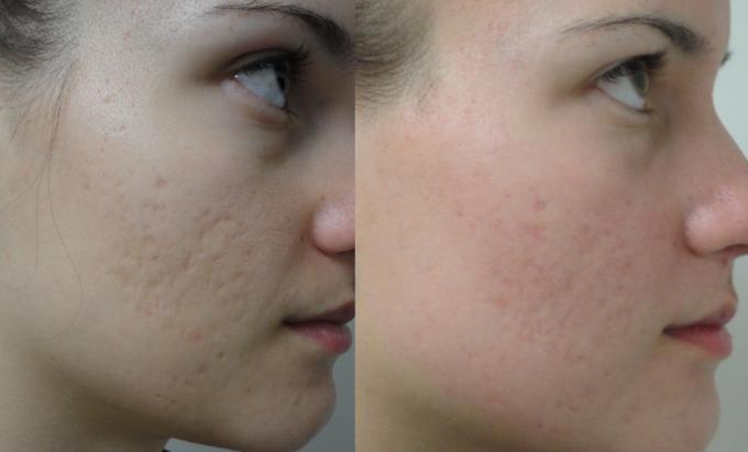 kem-tri-mun-neutrogena-on-the-spot-acne-9