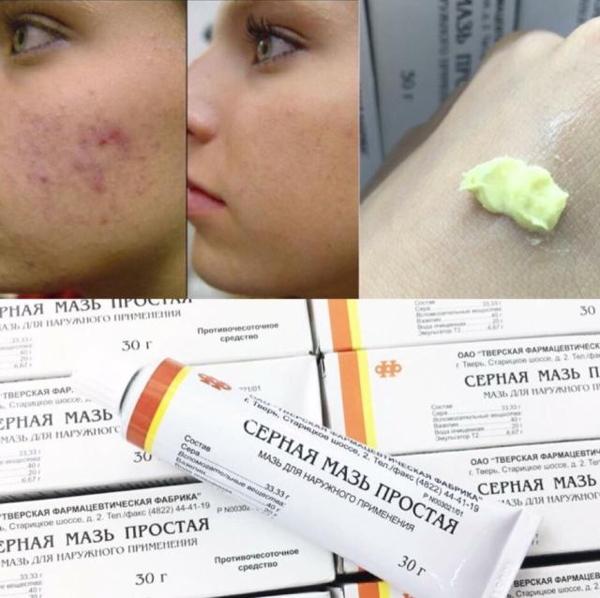 Kem trị mụn lưu huỳnh Cephar Nga - 025