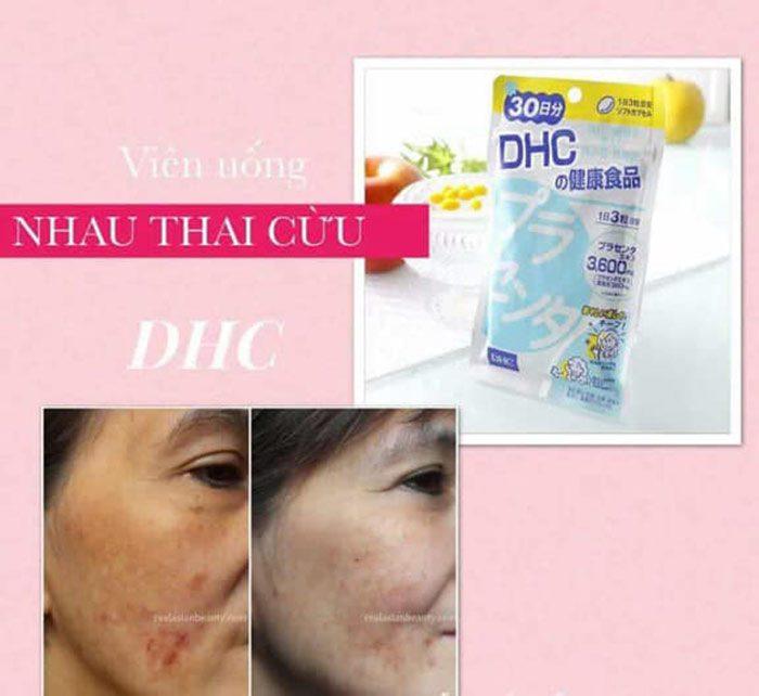 Viên Uống Nhau Thai Cừu DHC Placenta