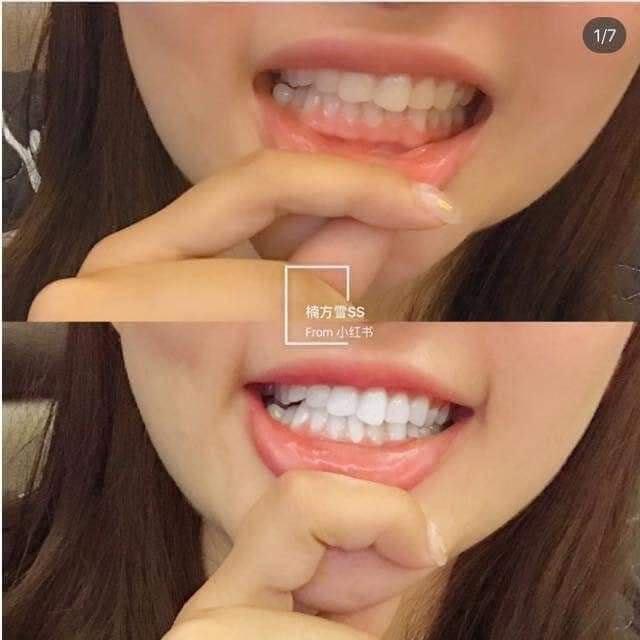 Kem đánh răng Median Dental IQ 93%