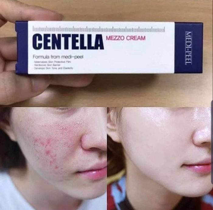 Kem trị mụn Medi Peel Centella Mezzo Cream