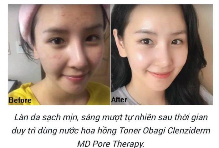 Nước Hoa Hồng Obagi Clenziderm MD Pore Therapy